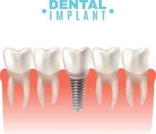 Dental Implants Bellflower