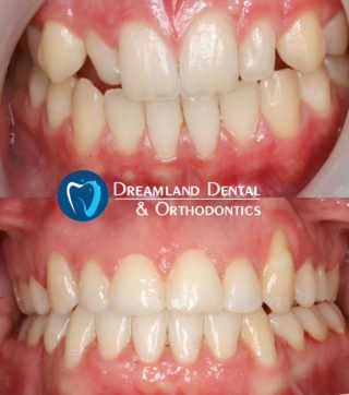 Orthodontics Bellflower Before & After 10
