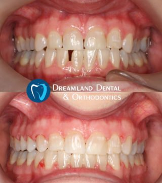 Orthodontics Bellflower Before & After 12