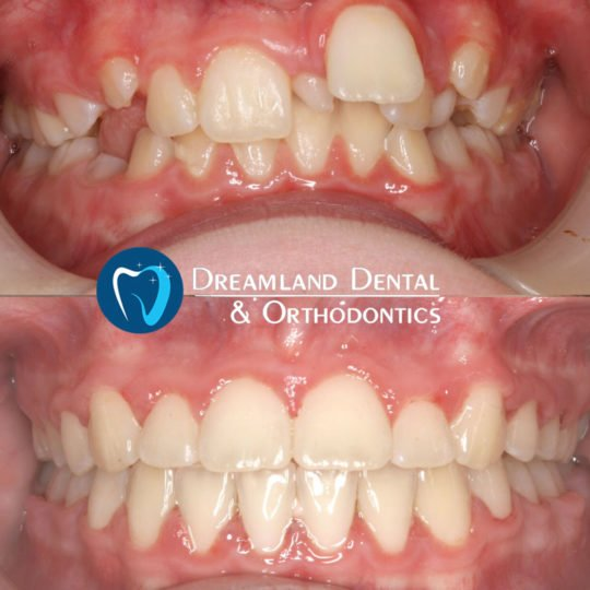 Extraction and Braces, Orthodontics Bellflower Before & After