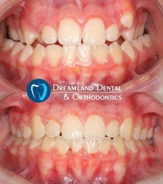 Orthodontics Bellflower Before & After 14