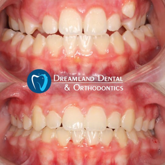 Orthodontics Bellflower Before & After 14