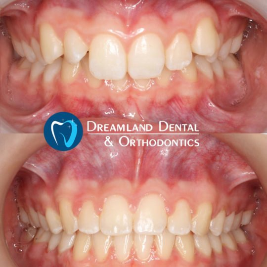Orthodontics Bellflower Before & After 15
