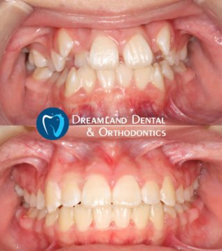 Palatal Expander and Traditional, Braces Orthodontics Bellflower Before & After