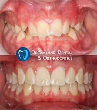 Orthodontics Bellflower Before & After 17