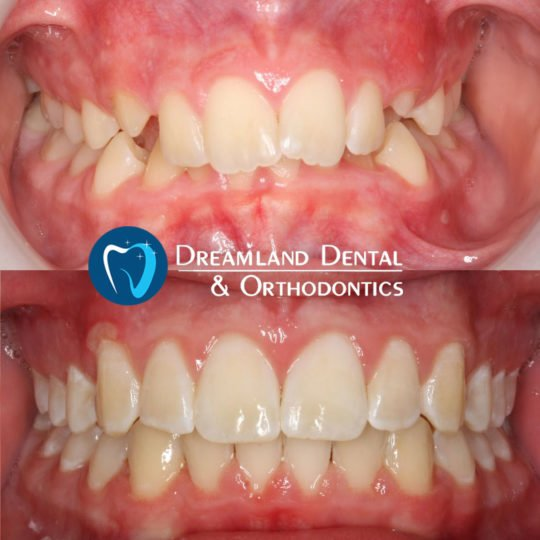 Orthodontics Bellflower Before & After 17