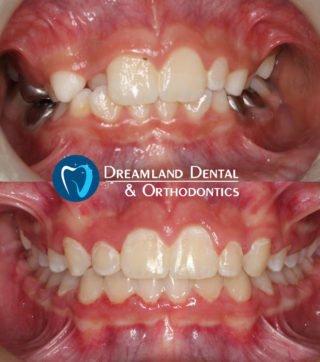 Orthodontics Bellflower Before & After 18