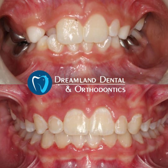 Orthodontics Bellflower Before & After 18