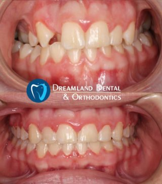 Orthodontics Bellflower Before & After 19