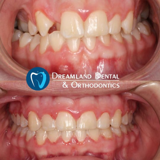 Orthodontics Bellflower Before & After 19