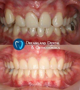 18 months orthodontics treatment