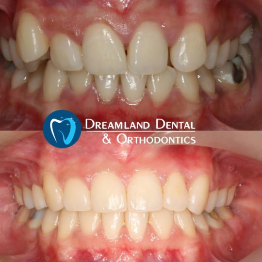 18 months orthodontics treatment