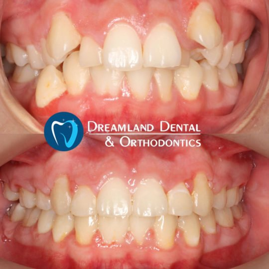 Orthodontics Bellflower Before & After 20
