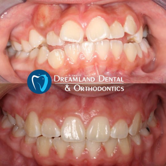 Crowded Teeth, 18 months of orthodontics treatment