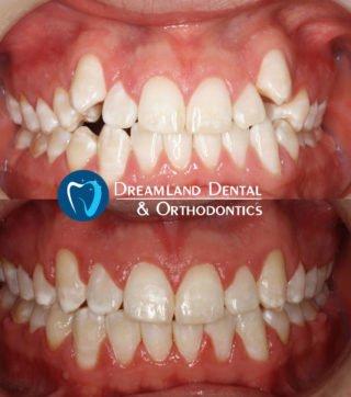 Orthodontics Bellflower Before & After 5