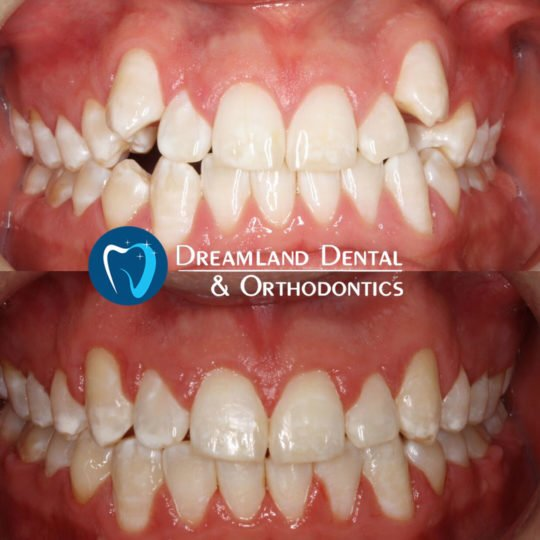 Orthodontics Bellflower Before & After 5