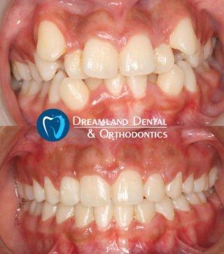 Orthodontics Bellflower Before & After 6