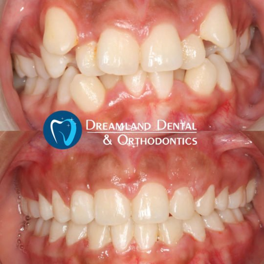 Orthodontics Bellflower Before & After 6