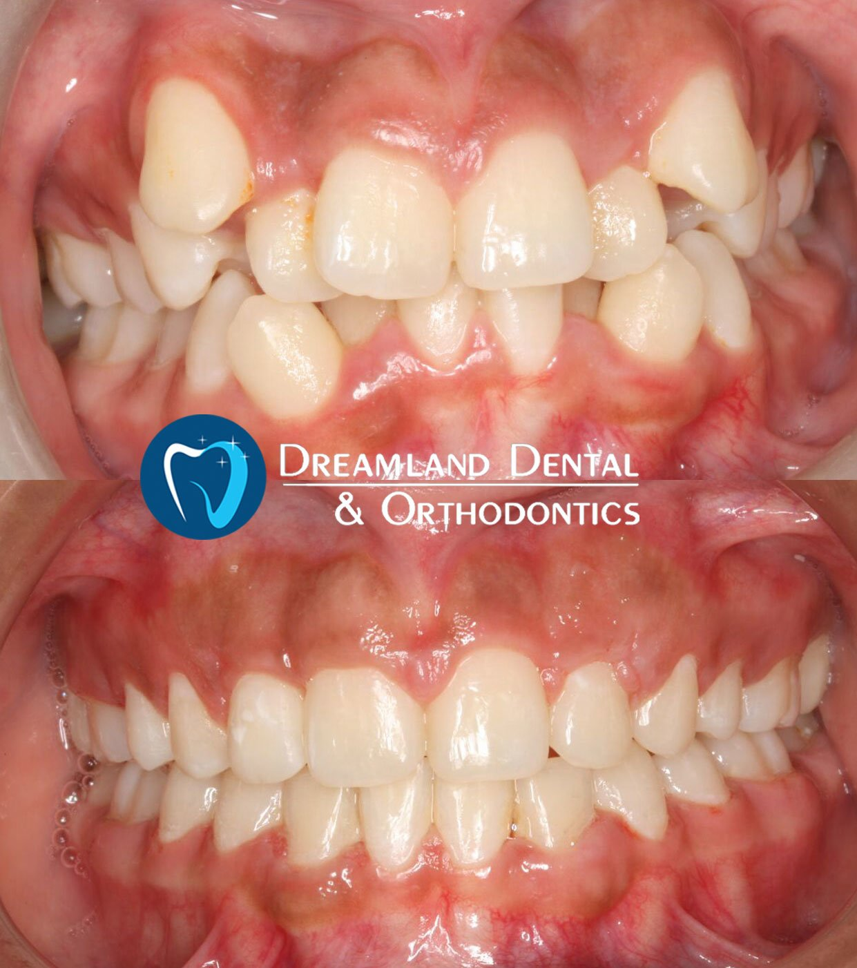 Before & After Gallery, Bellflower Dentist