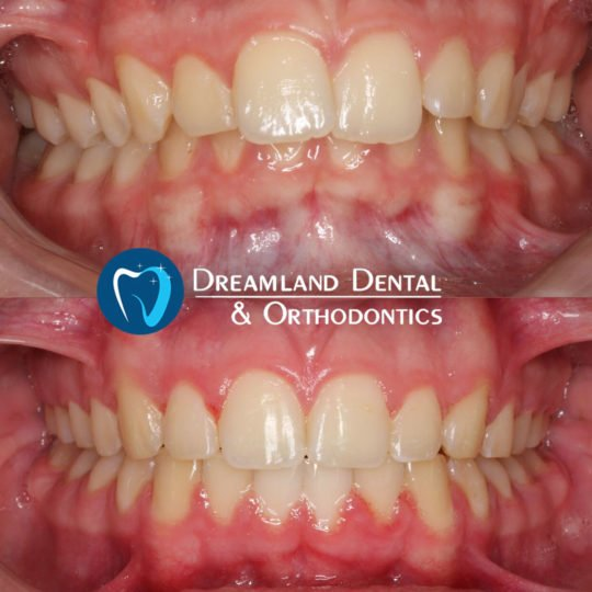 Orthodontics Bellflower Before & After 7