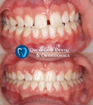 Invisalign for Diastema, Gap in Teeth, Orthodontics Bellflower Before & After