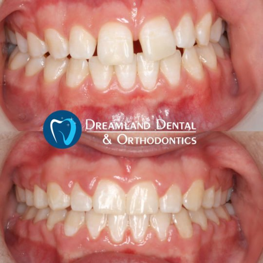 Invisalign for Diastema, Gap in Teeth, Orthodontics Bellflower Before & After