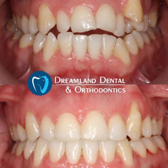 Clear Braces, Orthodontics Bellflower Before & After