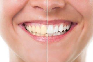Teeth Whitening Bellflower
