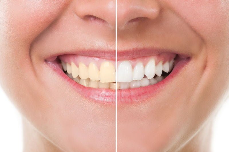 Teeth Whitening Bellflower