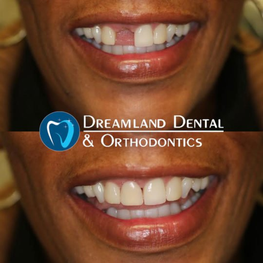 temporary partial denture before & after